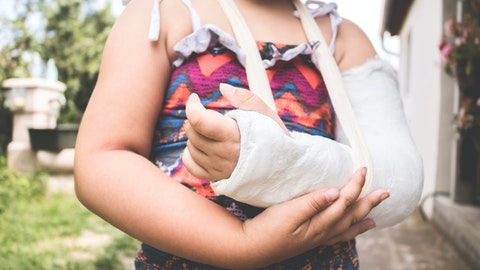 Jente med venstre arm i gips.